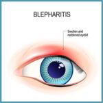 blepharitis treatment buffalo ny